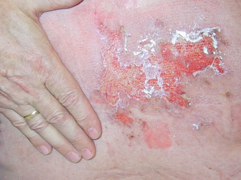 Herpes Zoster Picture Image on MedicineNet.com